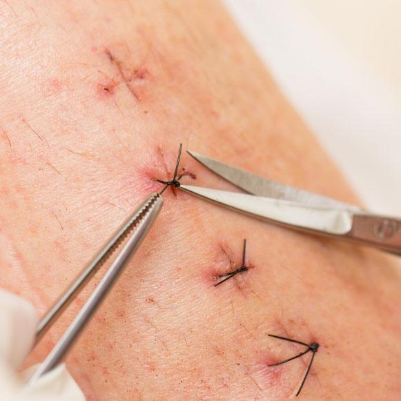 Retrait de point de suture